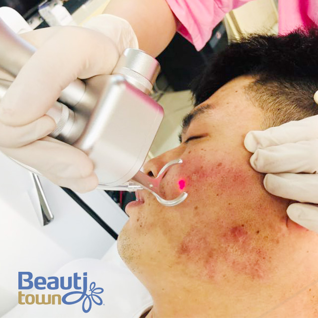 Buy Fractional Co2 Laser Singapore Price From China