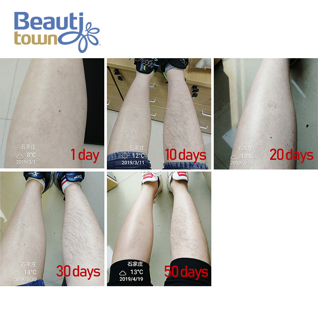 Diode Laser Hair Removal Machine 808nm BM108